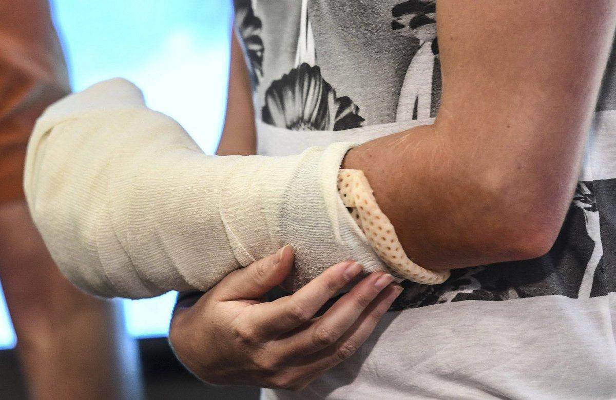 Detail zraněné ruky, kterou museli lékaři tenistce operovat