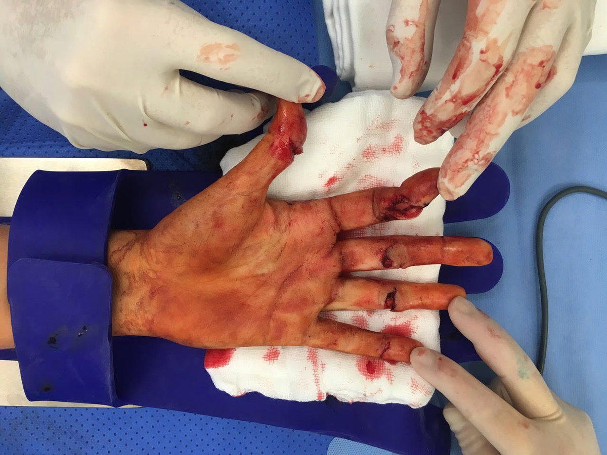 Ruka Petry Kvitové na operačním sále