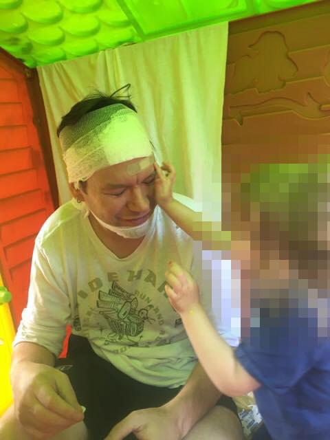 Matěj Ruppert má obvaz na hlavě i bradě, který mu dala dcera.