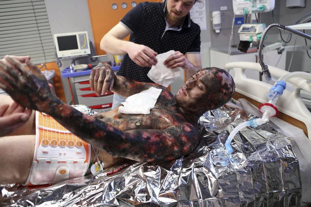 Seriál Modrý kód: Patriku Děrgelovi maskéři vytvořili popáleniny, které působily velmi přesvědčivě.