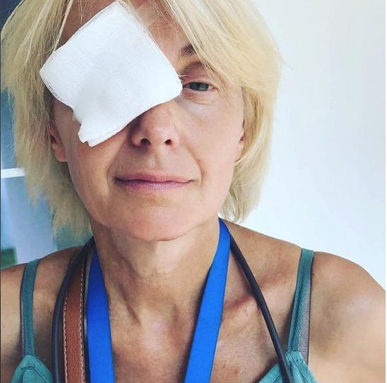 Veronika Žilková s obvazem přes oko.