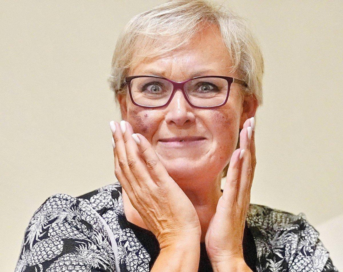 Zuzana Slavíková z Nejslabší, máte padáka! má na tváři fialové fleky.