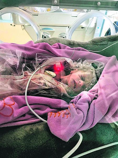První týdny života strávila Eliška v inkubátoru.