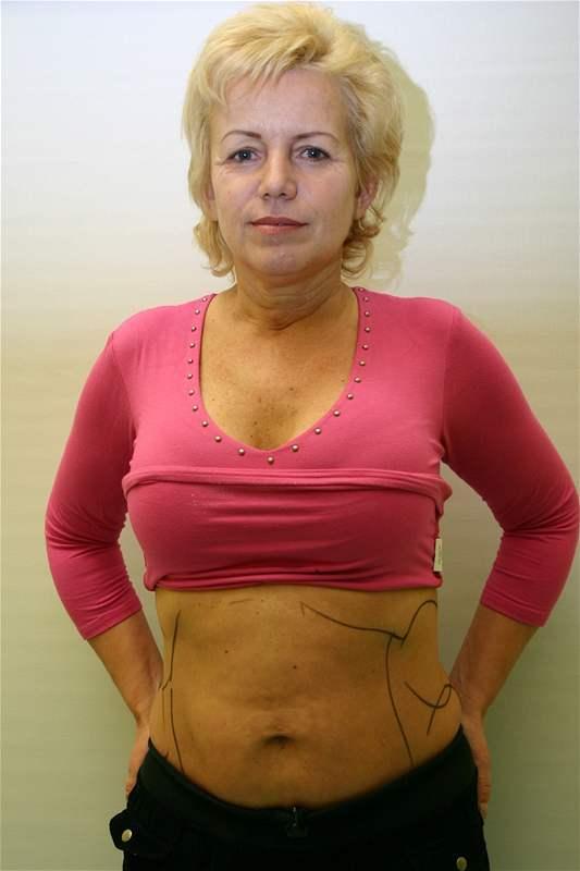 Hana Krampolová byla před plastikami velmi atraktivní žena