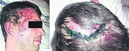 Napadení (32, 40) skončili s vyraženými zuby a zlomeninami v obličeji!