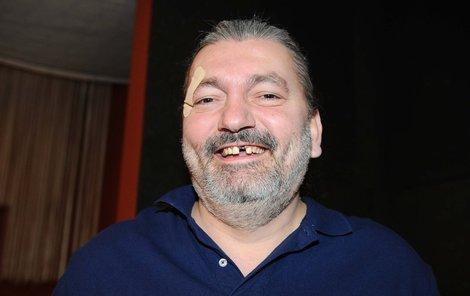 Hůlka přišel o přední zub při rvačce v hospodě.