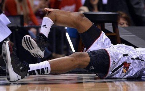 Wareovi trčela kost z nohy.
