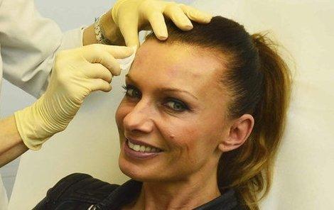 Alice Bendová se zásahům plastické chirurgie nebrání.