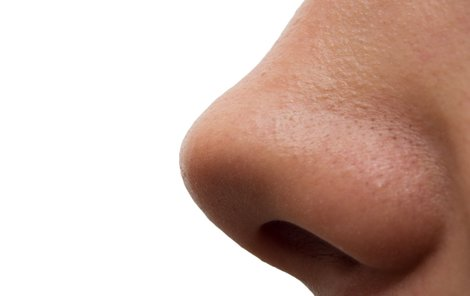 Ženě nový nos odstranili.