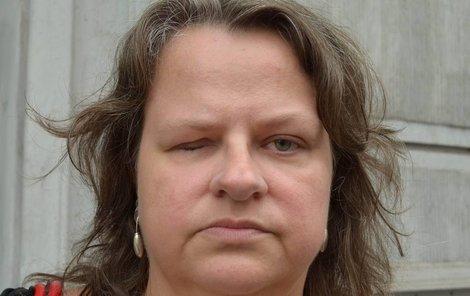Bývalá učitelka v autoškole Monika Havranová je zmrzačená po nevydařené operaci oka ve Vítkovické nemocnici.