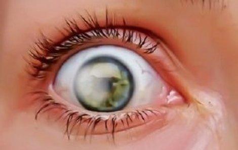 Slunce způsobuje rakovinu očí!