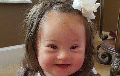 Emersyn Faith se narodila s Downovým syndromem.