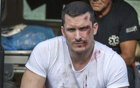 Ján Koleník v seriálu Za sklem. V jednom kuse je zraněný a tvář má samou jizvu.
