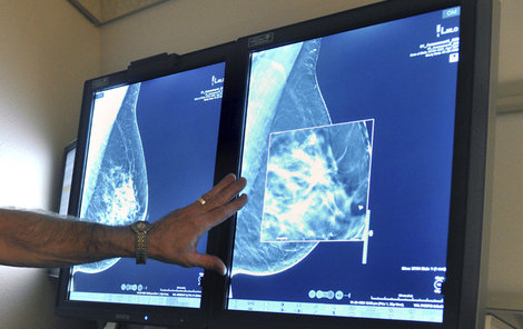 Mamograf odhalí nádor v prsu.