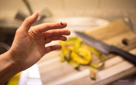 V kuchyni se lidé zraní nejčastěji tím, že se pořežou nebo popálí.