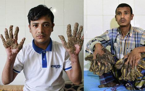 Stromový muž před operacemi (vpravo) a po nich.