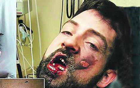 Andrew Hall po něhodě.