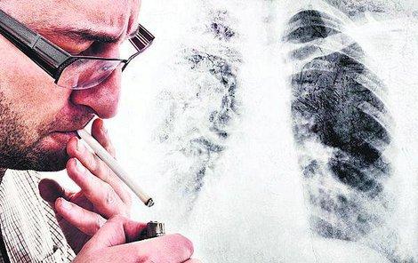 Riziko kuřáků onemocnět plicní rakovinou stoupá oproti nekuřákům až pětadvacetkrát.