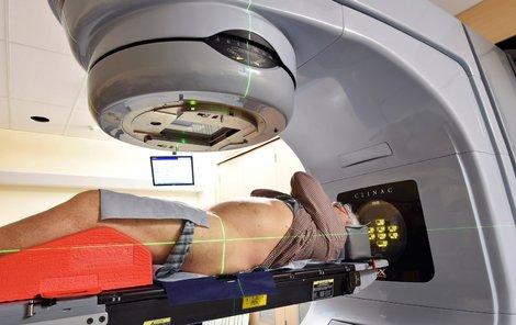 Radioterapie by mohla být výrazně účinnější.