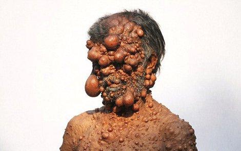 Nejenže nádory vypadají hrozivě, brání navíc Shadotovi v normálním životě.
