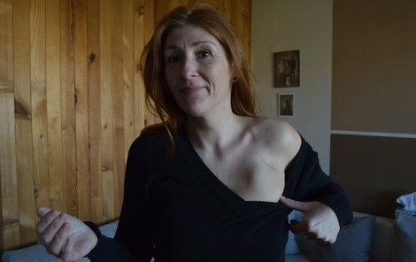 Daniela má defibrilátor voperovaný pod kůží.