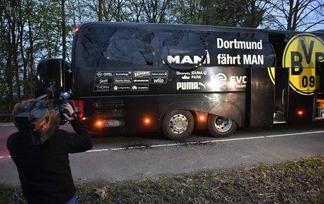 Tři bomby, které mířily na autobus Dortmundu, zranily obránce Bartru a doprovázejícímu policistovi na motorce poškodily sluch.