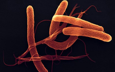 Bakterie cholery se šíří kontaminovanou vodou.