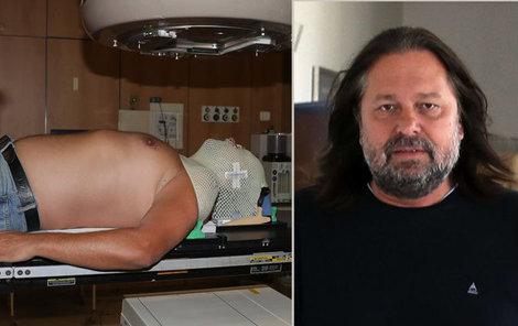 Už desáté ozařování má za sebou Jiří Pomeje, který bojuje s rakovinou hrtanu. Blesku názorně předvedl, jak celá, maximálně 15minutová procedura probíhá.