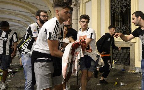 Z 1400 zraněných fandů je 7 v kritickém stavu, včetně sedmiletého chlapce a ženy.