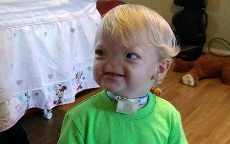 Timothy se narodil s anomálií, která postihuje 1 člověka ze 197 milionů.