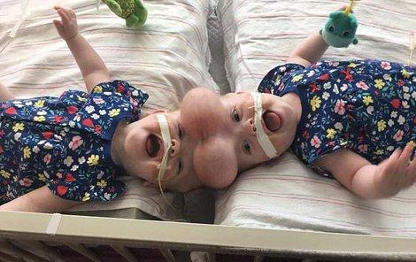 Siamským dvojčatům dali lékaři do hlavy speciální balonky, aby se jim napnula kůže