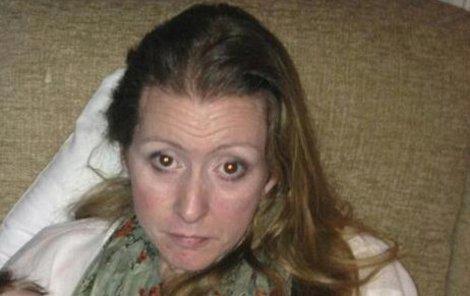 Lucinda varuje ostatní ženy, aby nepodceňovaly bolesti hlavy.