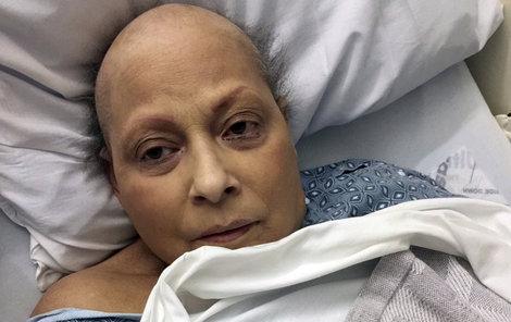 Žena v žalobě tvrdila, že mastek obsažený v dětském pudru společnosti J&J vyvolává rakovinu vaječníků.