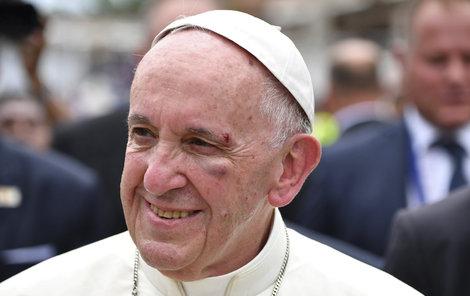 Papež se bouchl o sloupek v papamobilu a takhle to dopadlo.