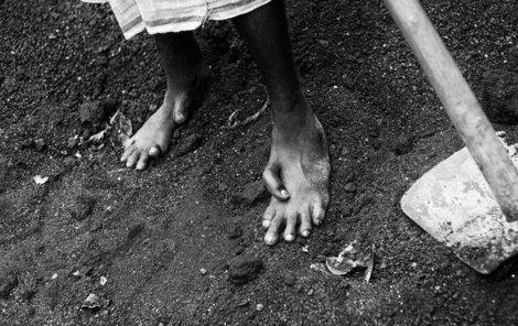 V indické oblasti Jadugoda jsou nejdéle fungující indické uranové doly. Vybírá si to svou daň na každé další generaci.