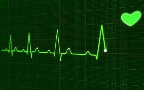 Arytmie se nejlépe pozná na EKG.
