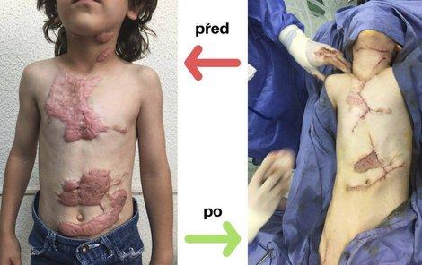 Abdaleláhovo tělo bylo pokryté hlubokými popáleninami... ...po operaci se chlapci ulevilo a je mu mnohem lépe.