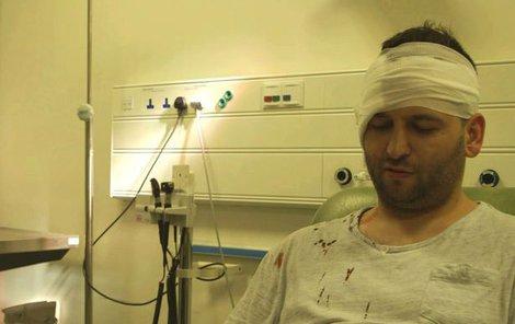 Doktoři mu ránu sešili, ale následky, a to nejen fyzické, si ponese celý život.