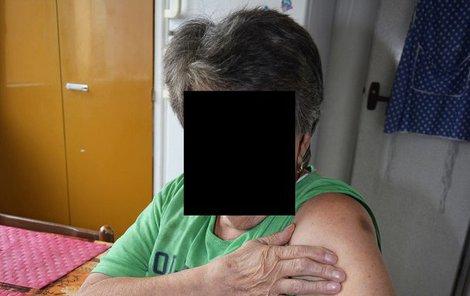 Marie má po útoku opilce na těle tři modřiny a ty hodně bolí.