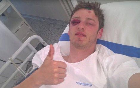 Robin utrpěl vážná zranění, ale díky přilbě naštěstí přežil.