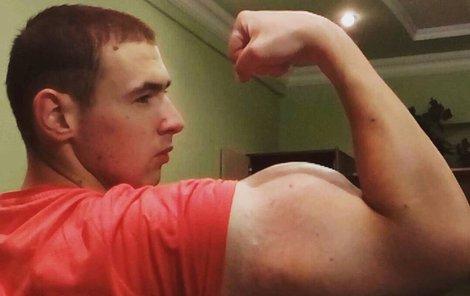 Během pár dnů mu bicepsy natekly na obvod 60 cm.