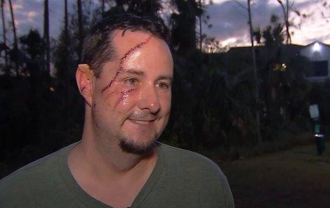 Z Andrewa čišela úleva, že děsivý atak přežil.