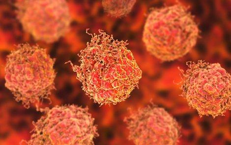V léčbě rakoviny tlustého střeva a v prevenci máme jisté rezervy.