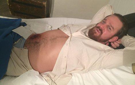 Aby se mohla operace vůbec natočit, ležel herec několik hodin bez hnutí pod rukama maskérky.