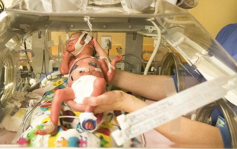 Předčasně narozeným dětem pomáhají inkubátory, díky nim překonají kritické momenty.