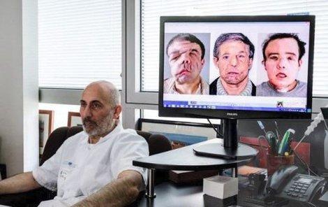 Transplantace obličeje je docela nová záležitost a na světě jich proběhly jen čtyři desítky. Francouz Jérôme Hamon (43) jako jediný má však za sebou hned dvě!