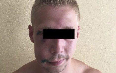 David M. (25) má pomlácený obličej a vyražené zuby.