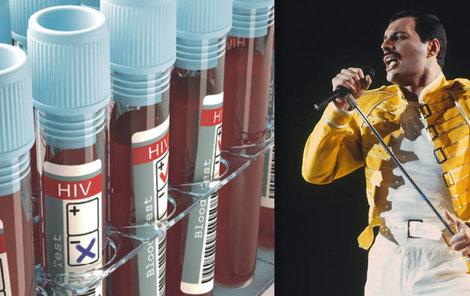 Dnes je den boje proti AIDS: Kdyby se Freddie Mercury nakazil dnes, mohl  by žít.