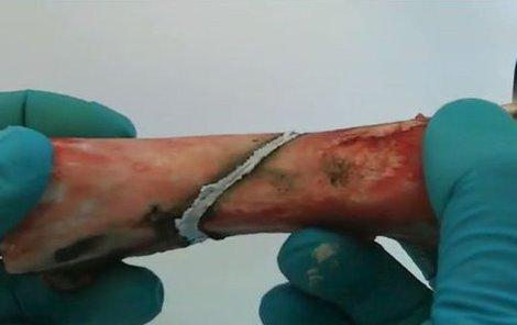 Lékaři testovali lepidlo na prasečích kostech, jsou velmi podobné lidským.