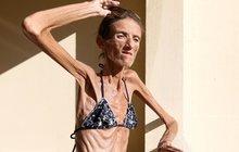 ŠOKUJÍCÍ FOTO Nejhubenější žena světa: Anorexie z ní udělala chodící kostru!